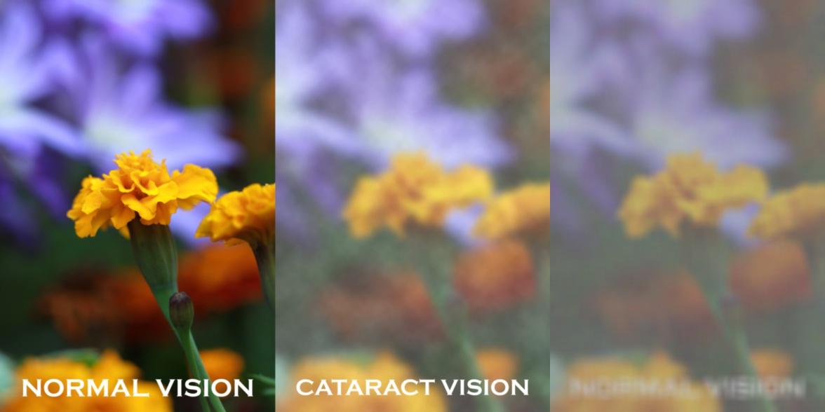 मोतियाबिंद (Cataract)