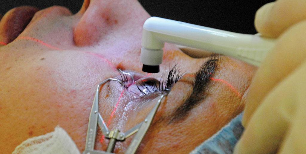 मोतियाबिंद की सर्जरी - Cataract Surgery in Hindi
