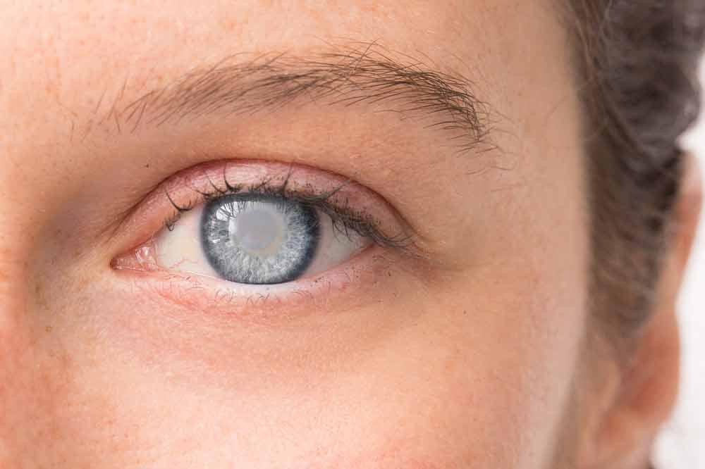 कोर्टिकल मोतियाबिंद (Cortical Cataract)