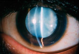 पश्च-अवचेतन मोतियाबिंद (Posterior Subcapsular Cataract)